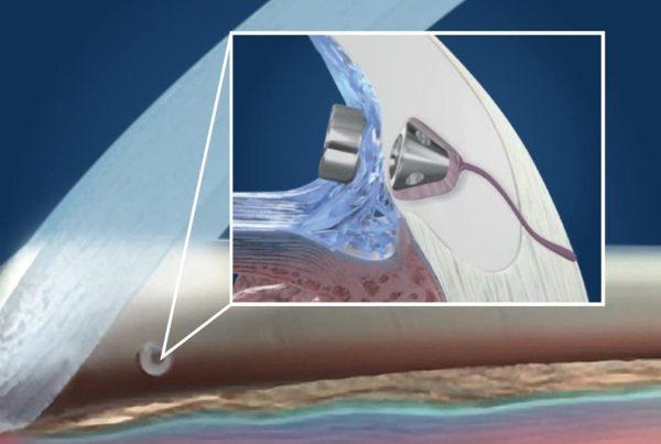 iStent Procedure Eye Treatment