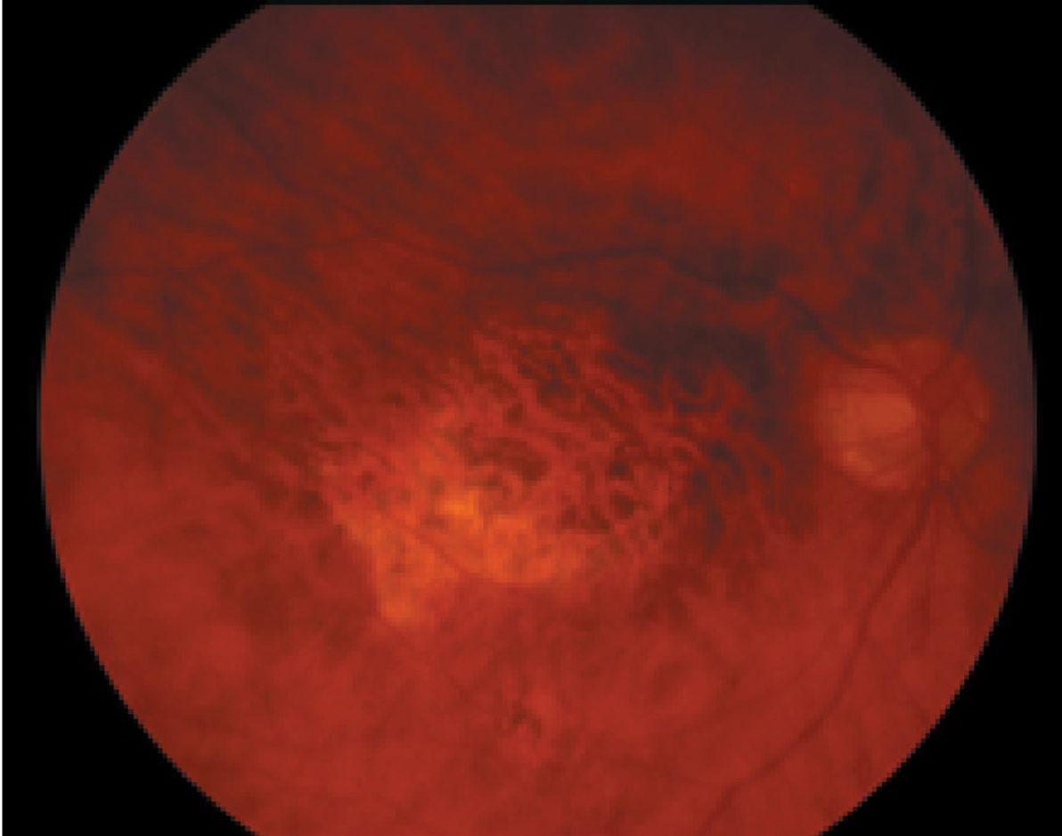 Age-Related Macular Degeneration Treatment Ohio