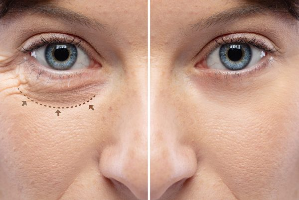 Facial Contouring Before And After