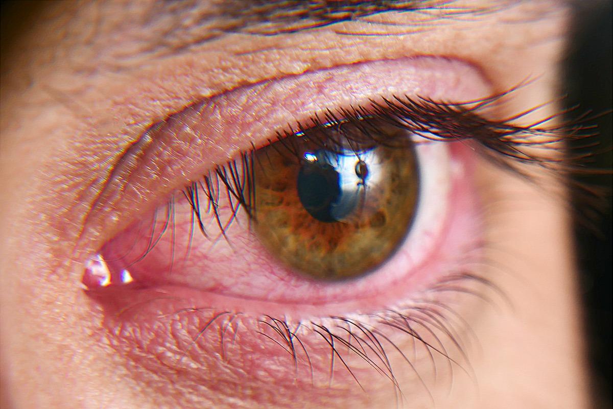 Dry Eye Disease Treatment Ohio