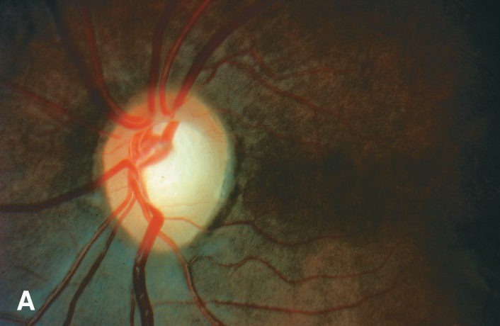 Micro Invasive Glaucoma Surgery Ohio
