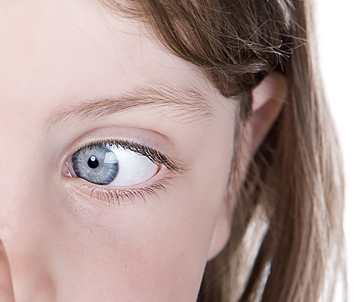 Strabismus Treatment Services Ohio